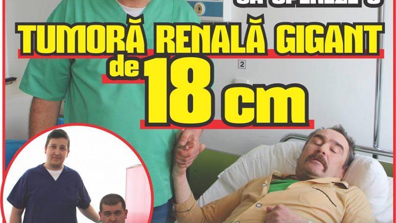 Medicii băimăreni se pregătesc să opereze o TUMORĂ RENALĂ GIGANT de 18 cm